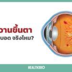 เบาหวานขึ้นตา เสี่ยงตาบอดจริงไหม