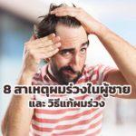 8 สาเหตุผมร่วงในผู้ชาย และ วิธีแก้ผมร่วง